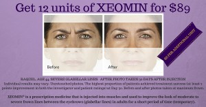 XEOMIN SPECIAL (1)